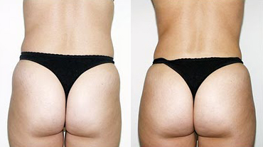 Before and After Photo: Butt Lift #3