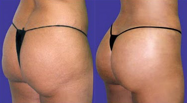 Before and After Photo: Butt Lift #4