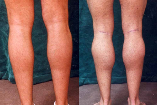 Before and After Photo: Calf Implants #1