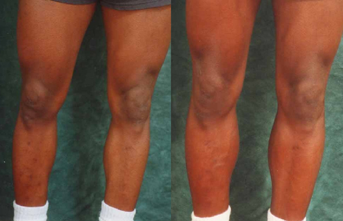 Before and After Photo: Calf Implants #2