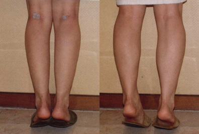 Before and After Photo: Calf Implants #3