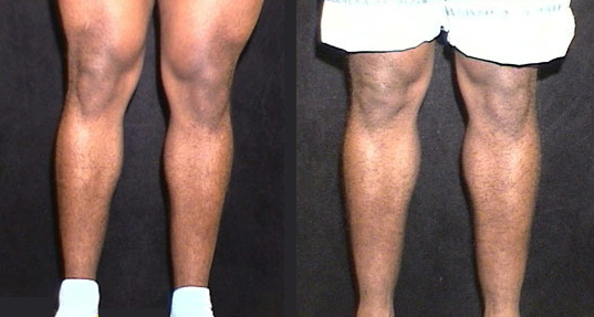 Before and After Photo: Calf Implants #4
