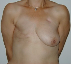 Before and After Photo: Mastectomy #1