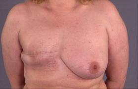 Before and After Photo: Mastectomy #2