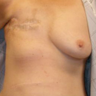 Before and After Photo: Mastectomy #3